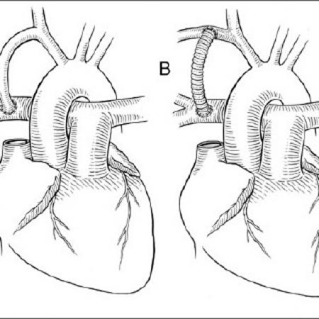 illustration of corrective heart surgery using a shunt